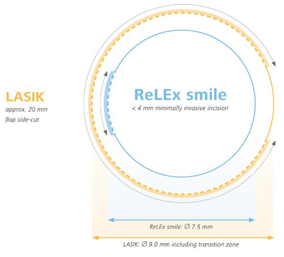 Relex-smile_vs_LASIK